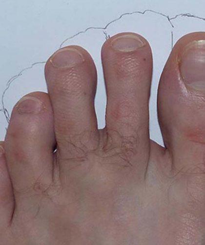 Compatibilité des chaussures FiveFingers selon la morphologie de vos pieds