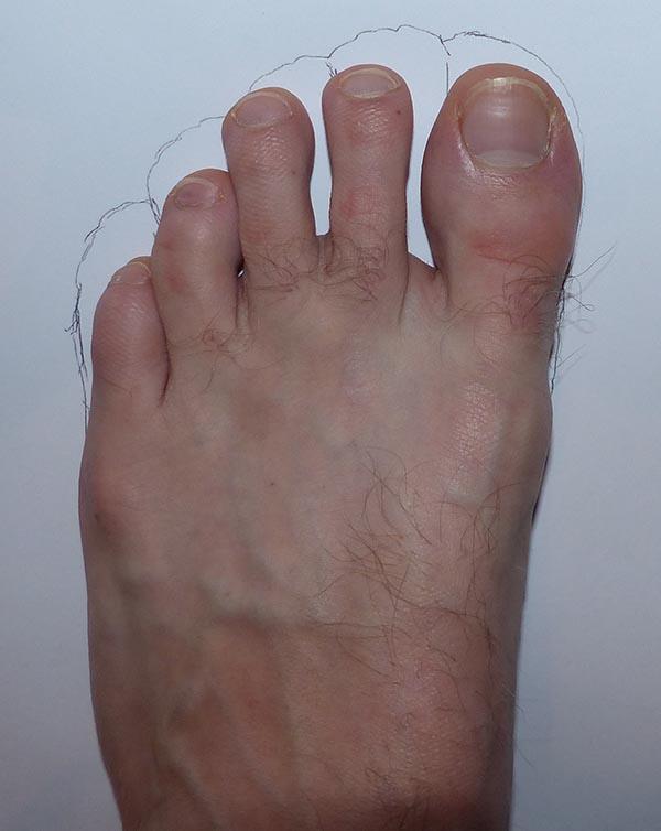 Photo d'exemple : comparaison morphologie d'un pied avec FiveFingers